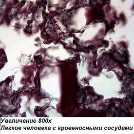 Предварительный просмотр фотографии Optika M-100FLED 40x-1600x Mono